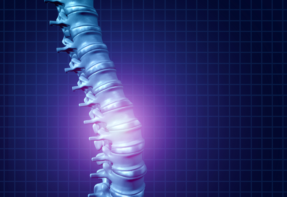 Milledgeville Brain and Spinal Injury Attorney