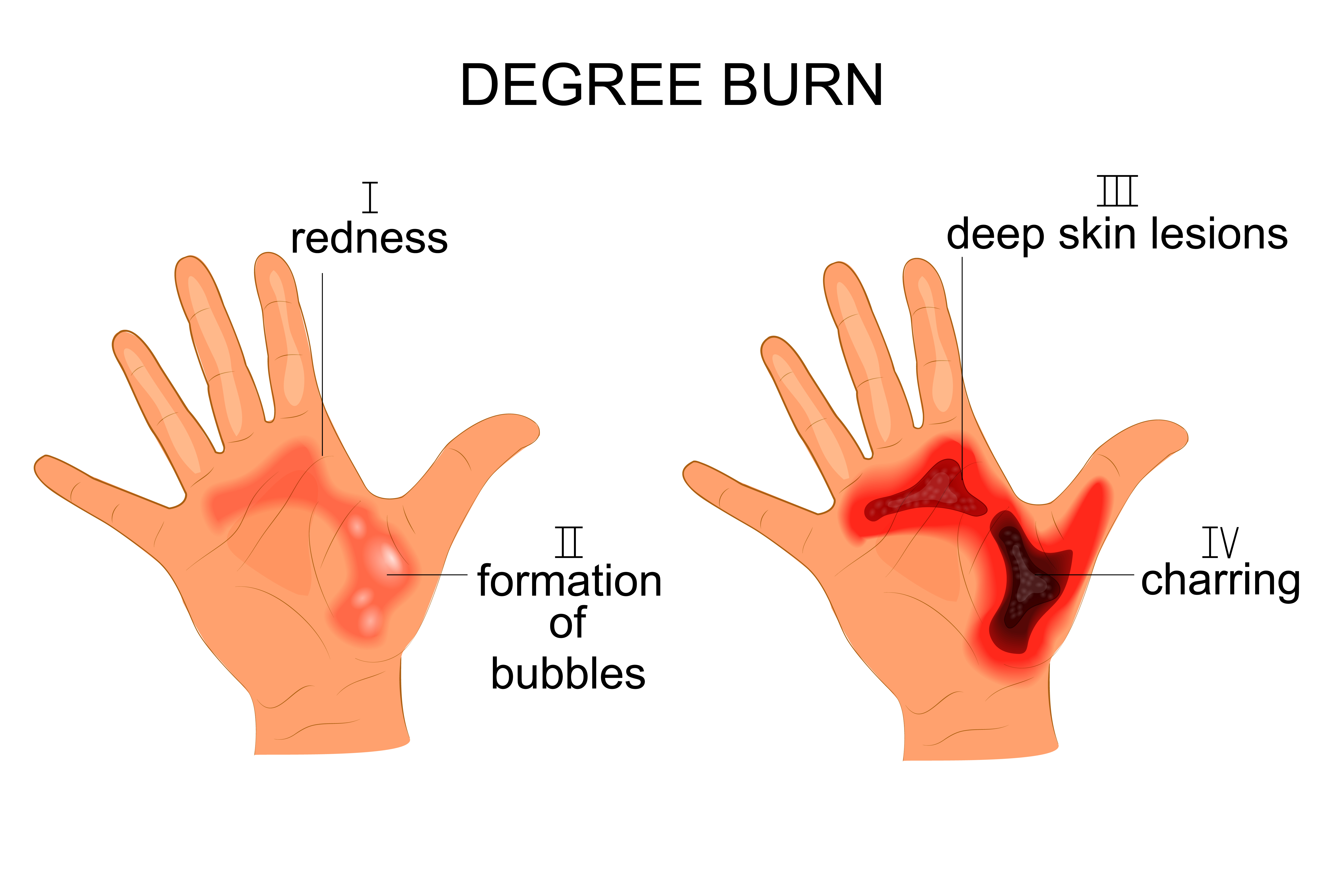 Morrow Burn Injury Attorney