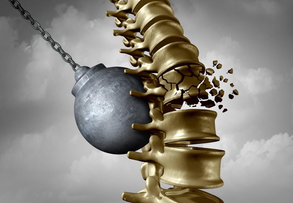 Jackson Brain and Spinal Injury Attorney