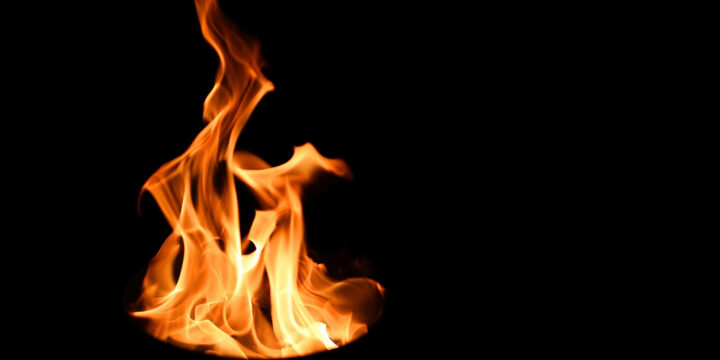 Madison Burn Injury Attorney